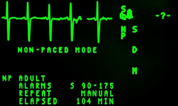 Image from screen of heart monitor